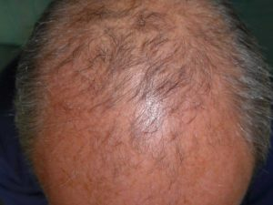 Haarwachstum anregen mit Haarwachstumshampoo