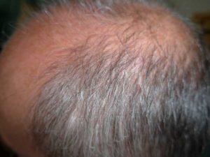 Glatze und Geheimratsecken bei Männern