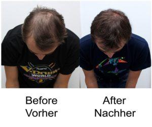 Haarausfall stoppen Laserbehandlung
