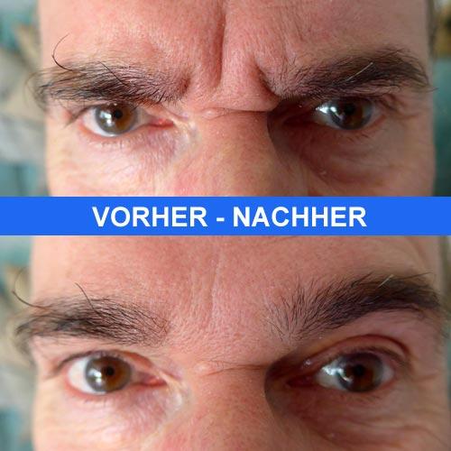 LI II Zornesfalte Bekämpfen: Hyaluronsäure Vs. Botox
